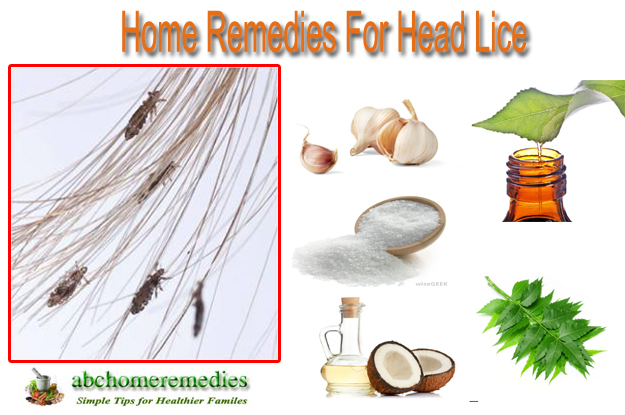 home remedies for head liceabchomeremedies, Skeleton