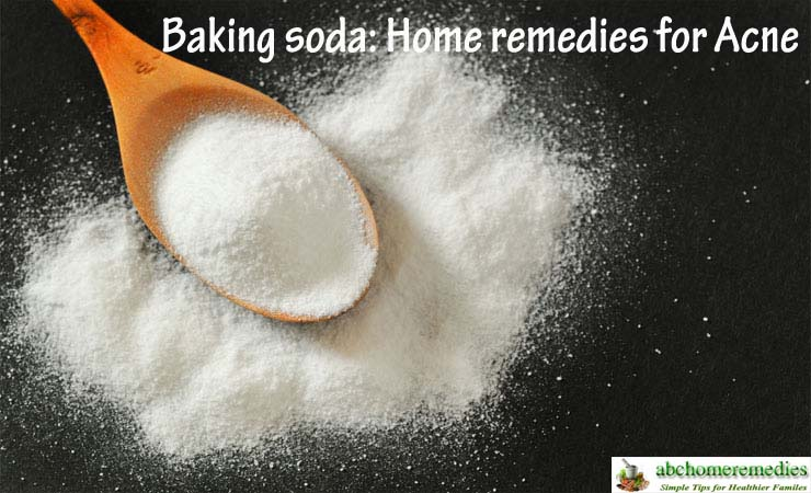 Baking-soda-home-remedies-for-acne