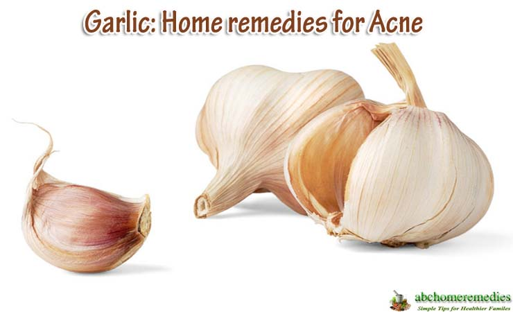 Garlic-home-remedies-for-acne