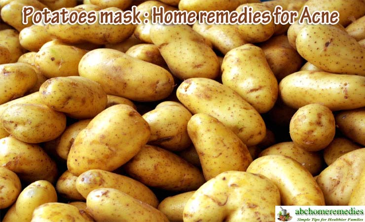 Potatoes-mask-home-remedies-for-acne
