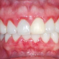 gingivitis-Treatments