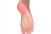 Home remedies for Heel Spurs