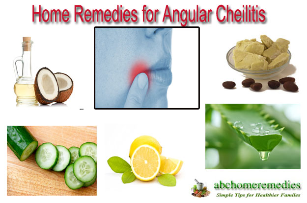 Home-Remedies-for-Angular-Cheilitis