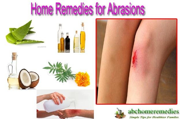 Home Remedies for Abrasions