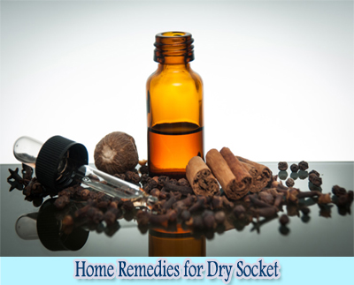 Clove Oil : Home Remedies for Dry Socket