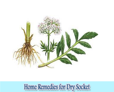 Valerian Root : Home Remedies for Dry Socket