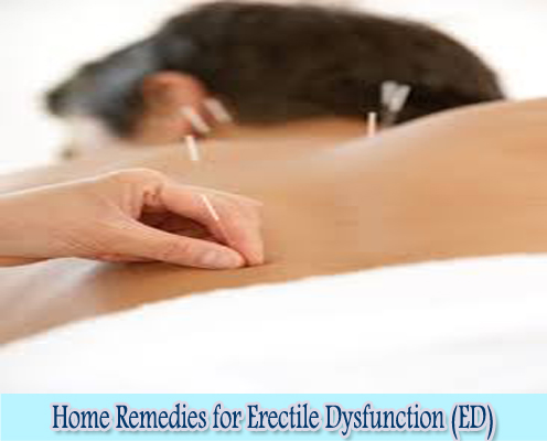 Acupuncture : Home Remedies for Erectile Dysfunction (ED)