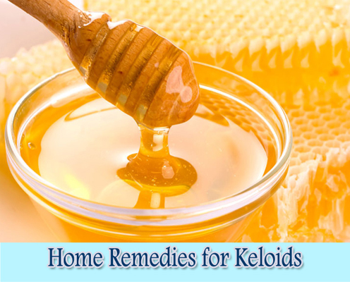 Honey : Home Remedies for Keloids