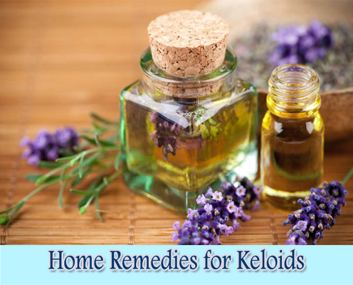 Lavender oil : Home Remedies for Keloids