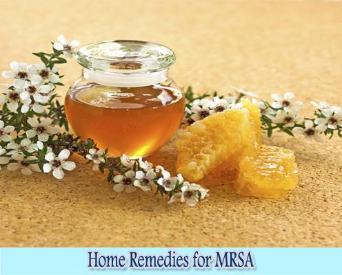 Manuka Honey : Home Remedies for MRSA