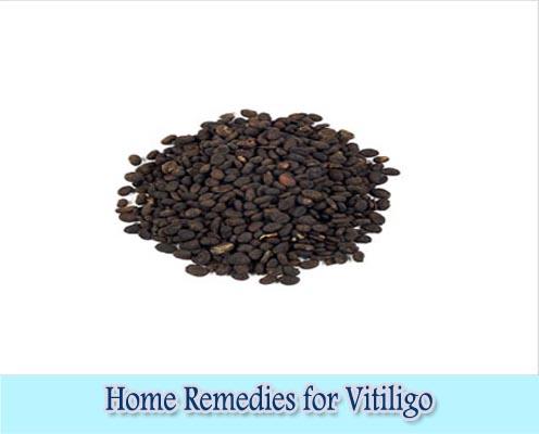 Bachi seed : Home Remedies for Vitiligo