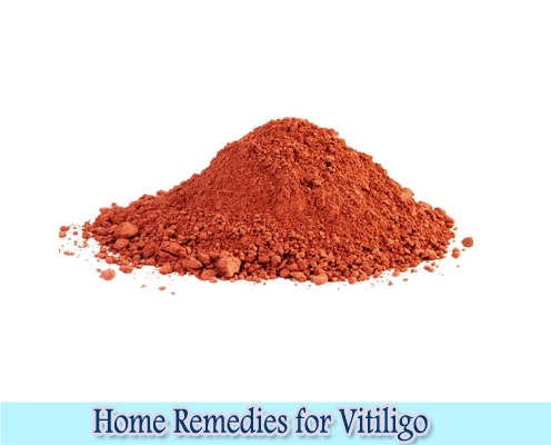 Red Clay : Home Remedies for Vitiligo