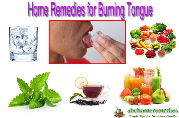 Home Remedies for Burning Tongue